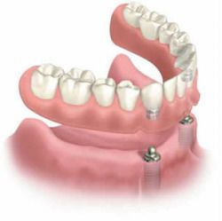 Implant Maintenance, Care and Expectations,