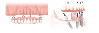 Improve your Quality of Life with a Dental Implant Supported Denture,