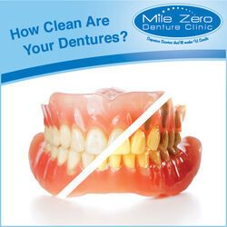 5 Tips for Cleaning Dentures