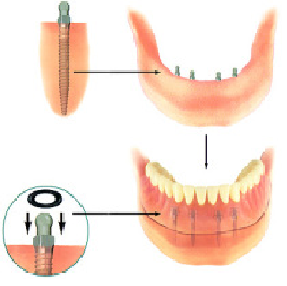 Four Implants