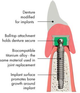 Implant Dentures   Mile Zero Denture Clinic